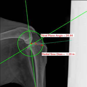TPLO radiograph with Intellect Measurements